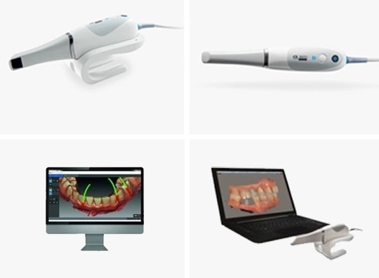 INTRAORAL-SCANNER-applebite-in-melbourne