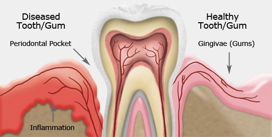 Gum Disease Treatment